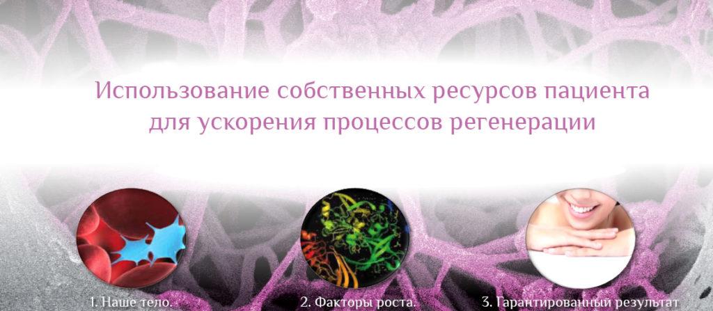 3blahi2_03