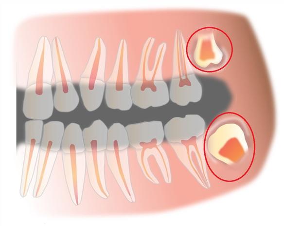 Удалении зубов мудрости